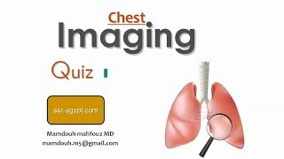 Chest film reading Dr.Mamdouh Mahfouz
