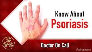 Things You Need to Know About Psoriasis   Doctor On Call   16/02/2019   PuthuyugamTV