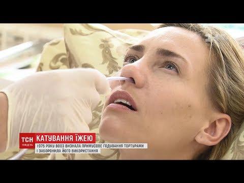Голодування Сенцова: ТСН.Тиждень перевірила, що відчуває пацієнт під час годування через зонд