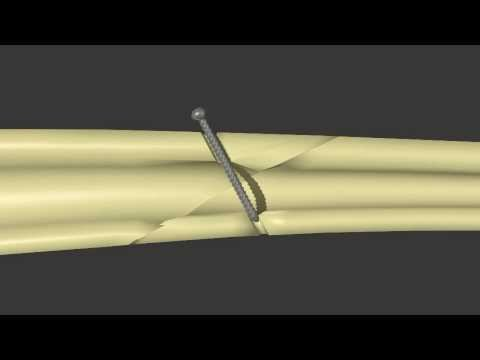 Fracture Fixation:  Lag Screw