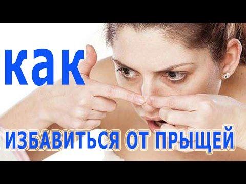 Как избавиться от угрей на лице в домашних условиях быстро
