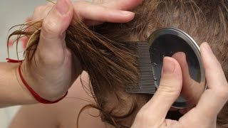 How to get rid of nits