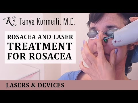 Rosacea and laser treatment for rosacea