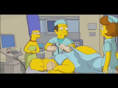 SU2C: Homer's Colonoscopy