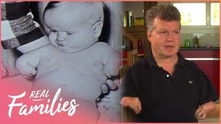 What Happened To The Children of the Thalidomide Epidemic? | No Limits | Real Families