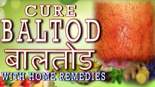 Home Remedy for Baal Tod - बालतोड़(With English Subtitle and captions in 162 languages)