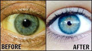 How To Whiten the Whites Of Your Eyes Naturally! ? Get Rid of Dull Yellow Eyes ?Sparkling White Eyes
