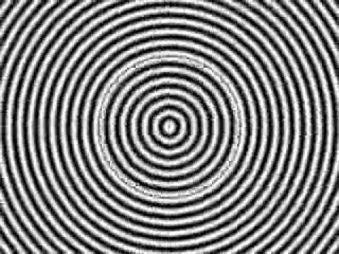 Hipnosis Hipnosis