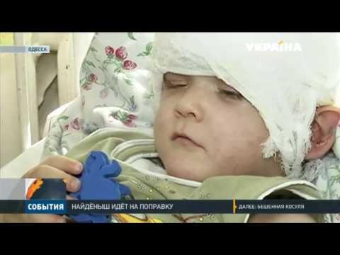 Одесский найденыш приходит в себя после операции