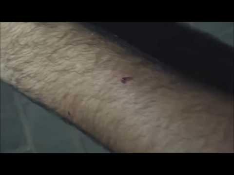 Bahrain : Protester Injured By Shotgun {Birdshot #8) During Clashes