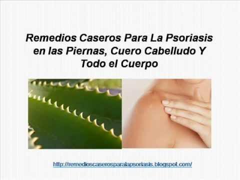 La psoriasis detrás a los cuellos