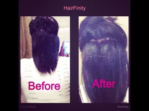 HairFinity Hair Growth: 120 Day UPDATE