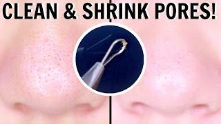 HOW TO EXTRACT & MINIMIZE PORES!!! | you wont regret this.