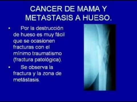 CANCER. TRATAMIENTO Y CURACION.