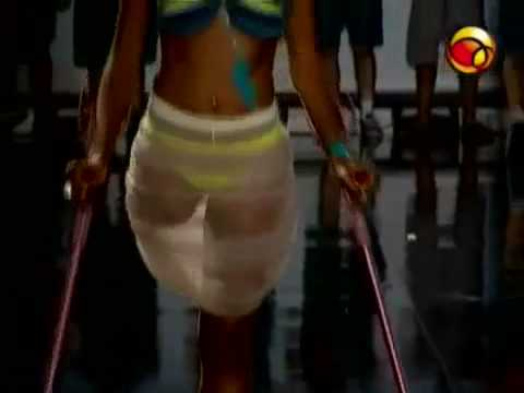 Brazilian RAK-Amputee Model on Crutches Showing a Perfectly Shaped Stump