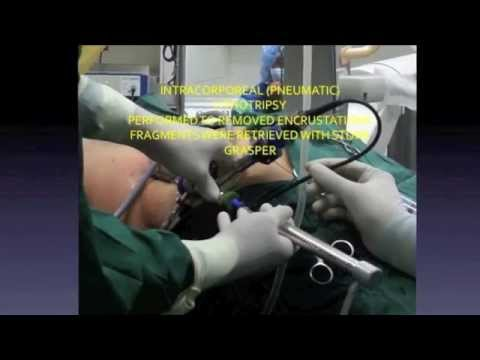 Pcnl  Percutaneous Removal Of Calculi And Retained Fragmented Stent, Dr Dg Lusaya, Philippines