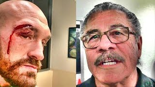 Stitch Duran, legendary cutman, on how Tyson Fury's nasty cut will affect his career going forward