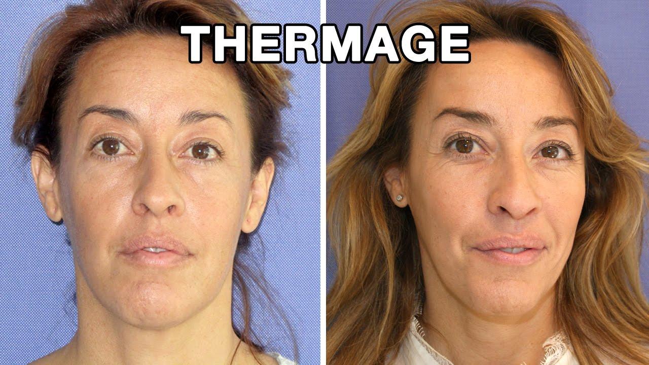 Thermage Antes Y Despu 233 S Testimonio Irene Youtube