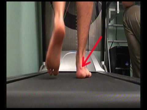 Pump Bump - High heels heel pain, Haglunds Deformity, Retrocalcaneal Exostosis (Heel Pain)