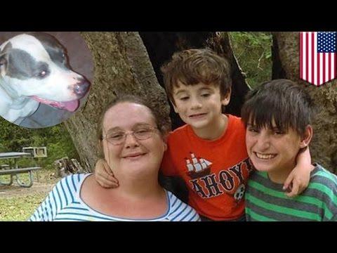 Remaja nyaris kehilangan kaki menyelamatkan adik dari serangan anjing - Tomonews