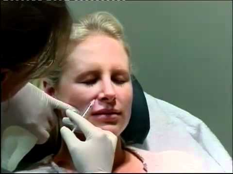 Gummy Smile Treatments NYC - (212) 644-6454 - NYC Gummy Smile Correction - New York, NY