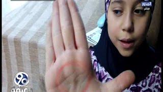 90دقيقة | بالفيديو .. طالبة تروي تفاصيل حرق معلمتها  ليدها لاجبارها علي اخذ درس خصوصي بمنزلها