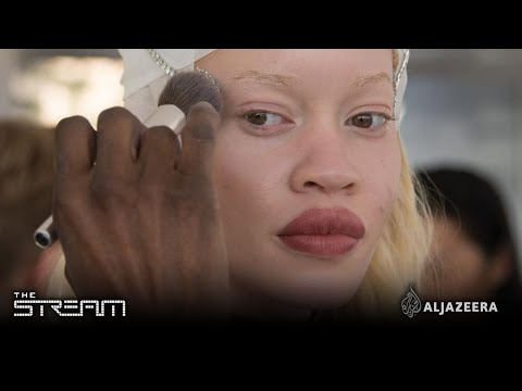 The Stream - Albinism is just a colour