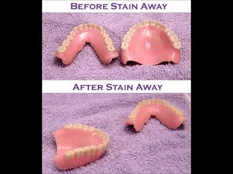 Stain Away Denture Cleaner- Review & How to