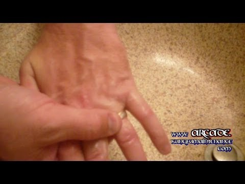 How To Remove A Wedding Ring Stuck On Finger Ugly Fail Win