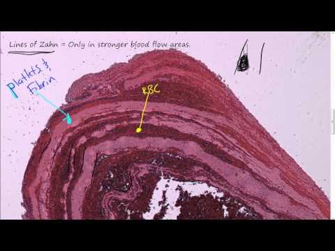 Mural thrombus for Cardiac mural thrombus