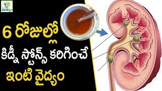 Home Remedy for kidney Stones - Mana Arogyam | Telugu Health Tips
