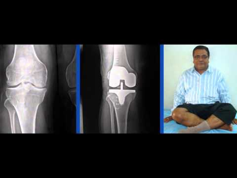 Chirayu Hospital For Best Spine Surgeon In Ahmedabad