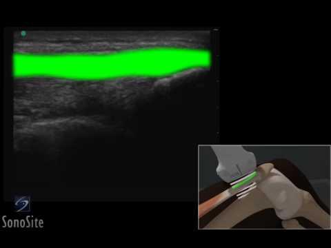 Quadriceps Tendon of The Quadriceps Tendon