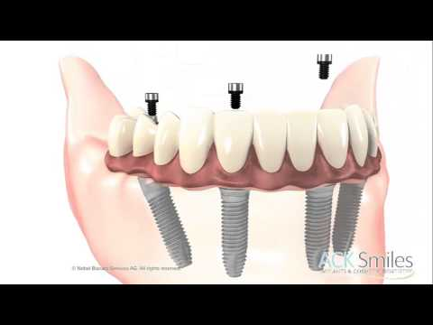All On Four Dental Implants in New Jersey. Call Us Now at 973 921 0505
