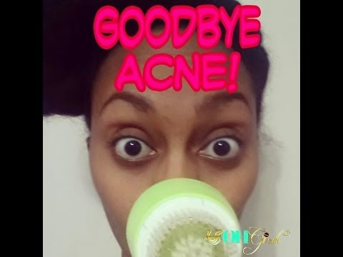 GoodBye Acne! (On the road to better skin)