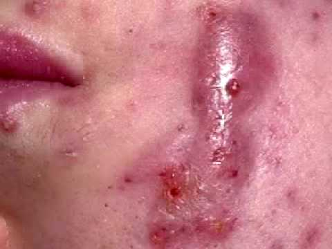 Cystic Acne Cases