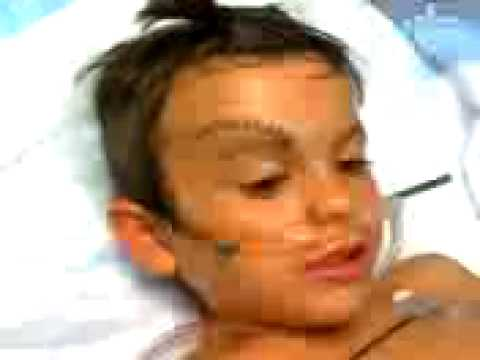 5 YR OLD GETS 26 STITCHES IN HEAD
