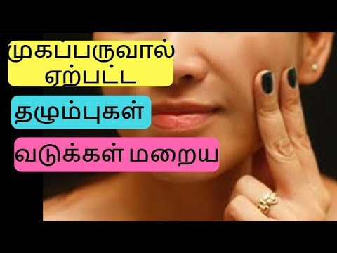 How to Remove Pimple/Acne Marks& Scars from Face | Pimple Marks Home Remedies | Beauty tips in Tamil