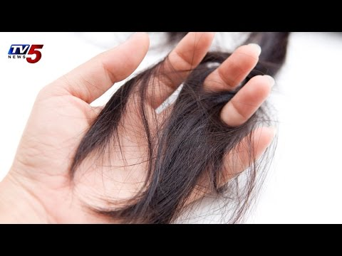 Hair fall and Dandruff | Vibes Remedies and Solution For Hair Loss : TV5 News
