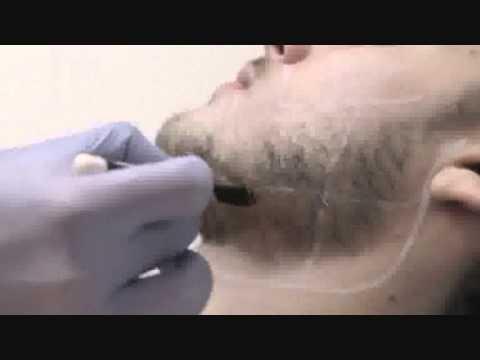 Эпиляция в подмышках у мужчин