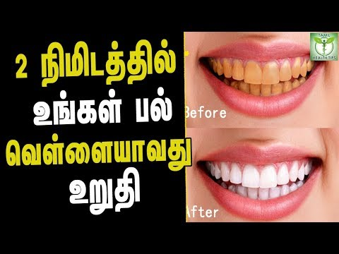 How to Whiten Teeth in 2 Minutes - Tamil health & Beauty Tips