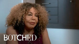 """""""Botched"""" Patient Rajee Returns for a 3rd Time 
