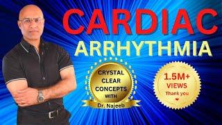 Cardiac Arrhythmias - Atrial & Ventricular Fibrillation - Tachycardia & Bradycardia