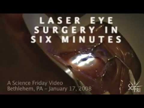 This is the Science Friday (National Public Radio) video about LASIK eye surgery. The funny thing about this video is that the narrator, who is probably also...