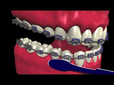 How to Brush and Floss with Braces - Marda Loop Braces - Dr. Andrew Chen