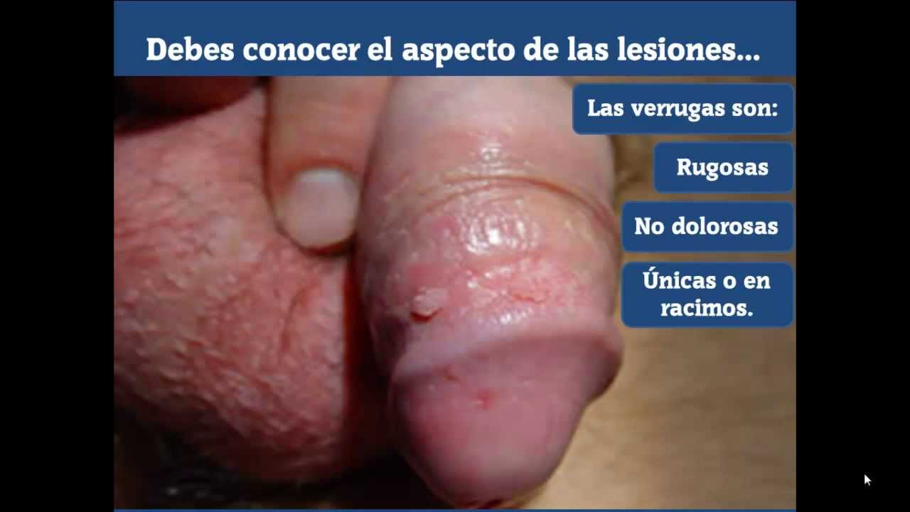 infeccion por hpv: