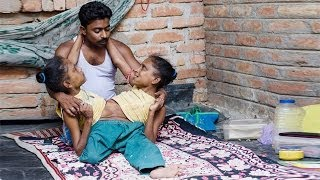 Conjoined Sisters Find Love In The Arms Of One Man