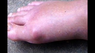 Gout Solution - Anti Gout Drugs - Classification And Mechanism Of Action In Hindi