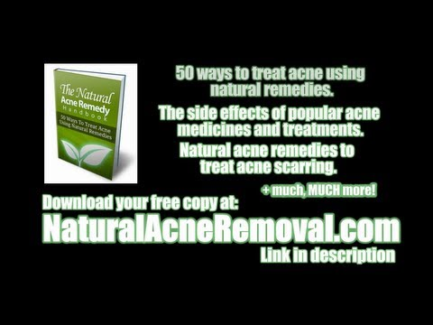 Free Natural Acne Removal eBook