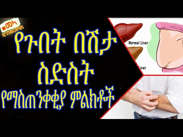 ETHIOPIA -Warning Signs Show That Your Liver is Full of Toxins